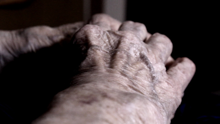 skin wounds for aged care patients